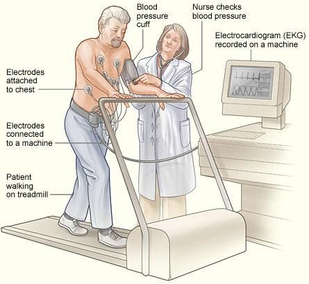 The image shows a patient having a stress test. Electrodes are attached to the patient's chest and connected to an EKG (electrocardiogram) machine. The EKG records the heart's electrical activity. A blood pressure cuff is used to record the patient's blood pressure while he walks on a treadmill.