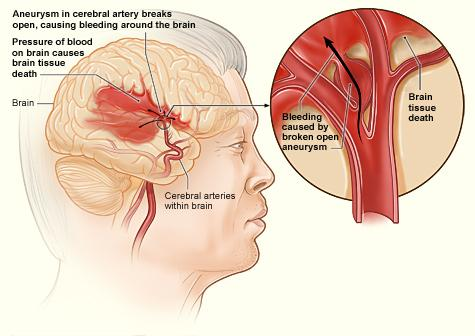 The illustration shows how a hemorrhagic stroke can occur in the brain. An aneurysm in a cerebral artery breaks open, which causes bleeding in the brain. The pressure of the blood causes brain tissue death.