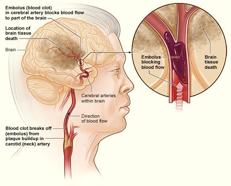The illustration shows how an ischemic stroke can occur in the brain. If a blood clot breaks away from plaque buildup in a carotid (neck) artery, it can travel to and lodge in an artery in the brain. The clot can block blood flow to part of the brain, causing brain tissue death.