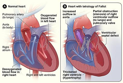 Figure A shows the structure and blood flow inside a normal heart. Figure B shows a heart with the four defects of tetralogy of Fallot.