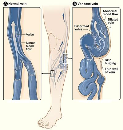 Figure A shows a normal vein with a working valve and normal blood flow. Figure B shows a varicose vein with a deformed valve, abnormal blood flow, and thin, stretched walls. The middle image shows where varicose veins might appear in a leg.