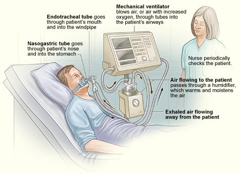 The illustration shows a standard setup for a ventilator in a hospital room. The ventilator pushes warm, moist air (or air with increased oxygen) to the patient. Exhaled air flows away from the patient.