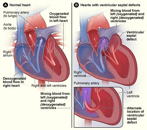 Figure A shows the structure and blood flow inside a normal heart. Figure B shows two common locations for a ventricular septal defect. The defect allows oxygen-rich blood from the left ventricle to mix with oxygen-poor blood in the right ventricle.