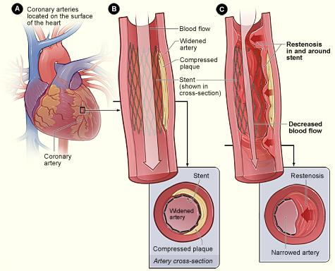 Figure A shows the coronary arteries located on the surface of the heart. Figure B shows a stent-widened artery with normal blood flow. The inset image shows a cross-section of the stent-widened artery. In figure C, tissue grows through and around the stent over time. This causes a partial blockage of the artery and abnormal blood flow. The inset image shows a cross-section of the tissue growth around the stent.