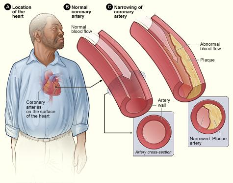 Figure A shows the location of the heart in the body. Figure B shows a normal coronary artery with normal blood flow. The inset image shows a cross-section of a normal coronary artery. Figure C shows a coronary artery narrowed by plaque. The buildup of plaque limits the flow of oxygen-rich blood through the artery. The inset image shows a cross-section of the plaque-narrowed artery.
